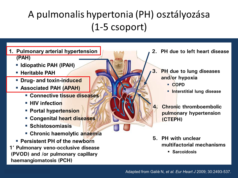 pulmonalis vénás hipertónia