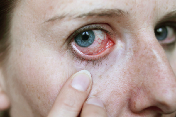 magas vérnyomás és a szem