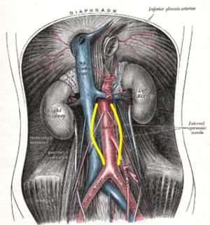 Coarctatio aortae és magas vérnyomás