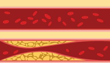 Nem csak magas vérnyomás – hypertonia szindróma!