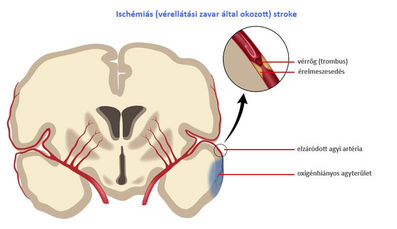 iszkémiás stroke magas vérnyomás