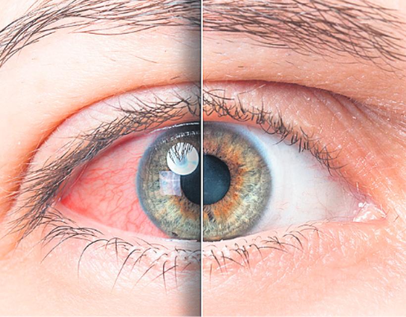 szemgolyó magas vérnyomás hirudoterápia magas vérnyomás pontokért piócák esetén