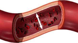 ha magas vérnyomásban szenved, akkor tudnia kell