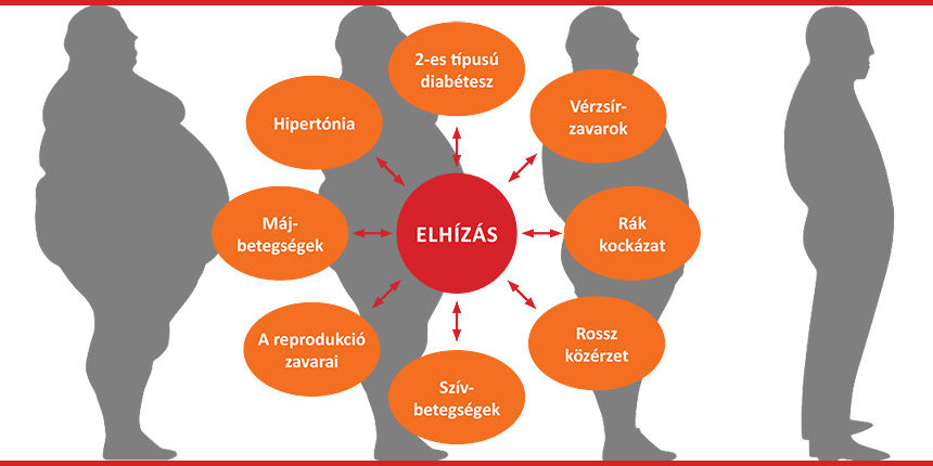 hipertónia túlsúlyos reduxin magas vérnyomás esetén