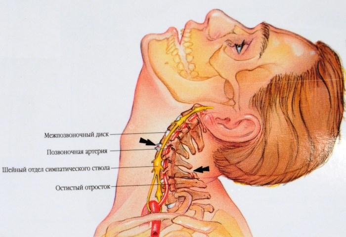 gyakorlatok a nyaki magas vérnyomás ellen)