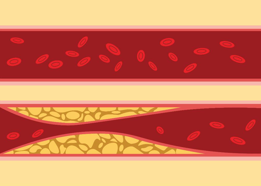 osteoarthritis és magas vérnyomás)