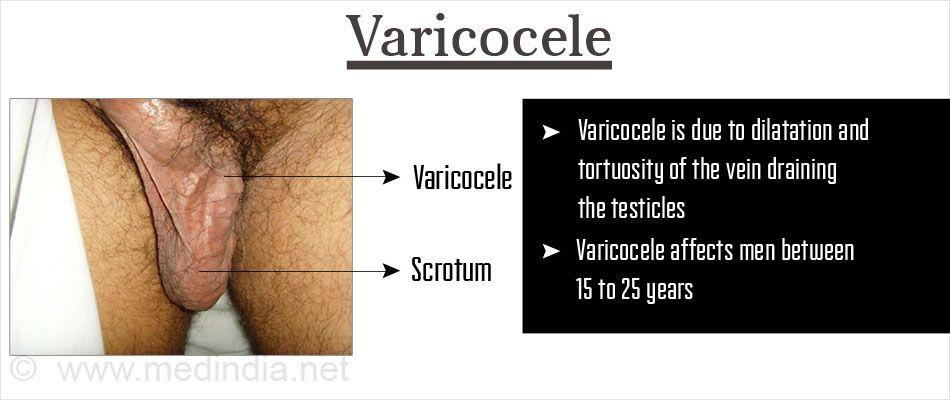 varicocele magas vérnyomás)