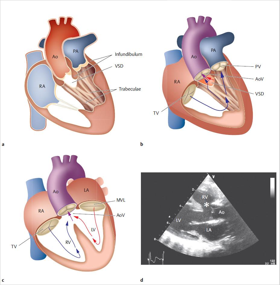 aorta hipertónia)