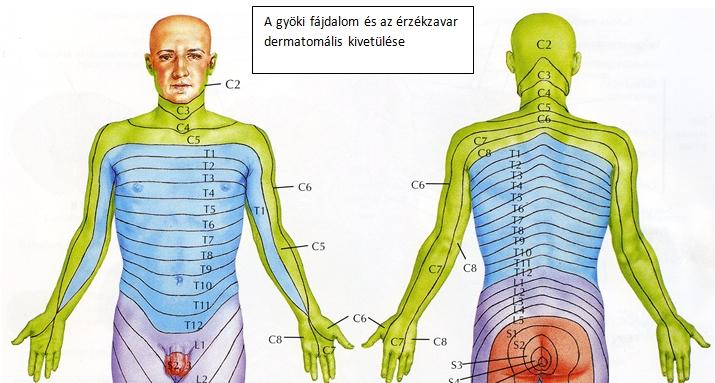 Nyaki gerincfájdalmak-leírás és a nyaki gerinc gyógykezelése