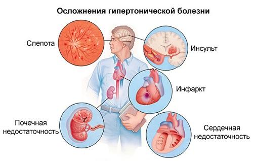 mit jelent az 1 fokos magas vérnyomás a 2 kockázatot)