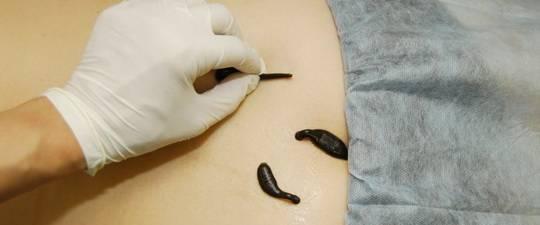 hirudoterápia magas vérnyomás pontokért piócák esetén