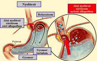 Milyen betegséget jellemez az alsó nyelőcső záróizom magas vérnyomása)