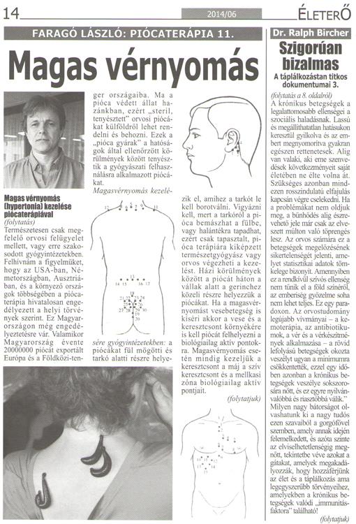 hirudoterápia magas vérnyomás pontokért piócák esetén)