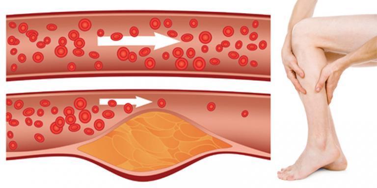 magas vérnyomás mágneses kezelés)