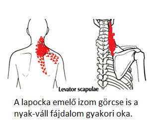 Mi a csigolya artéria szindróma?