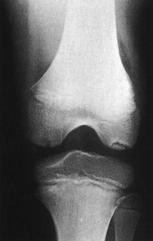 egyidejű hipertónia osteochondrosis