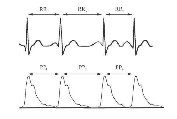 magas vérnyomás EKG terheléssel