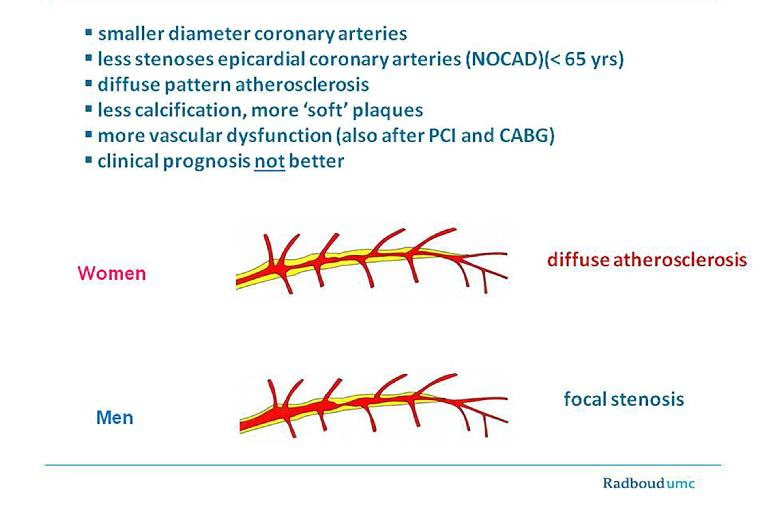 angina pectoris hipertónia oka)