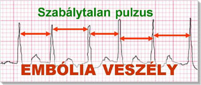 magas vérnyomás és ritmuszavarok kezelése)
