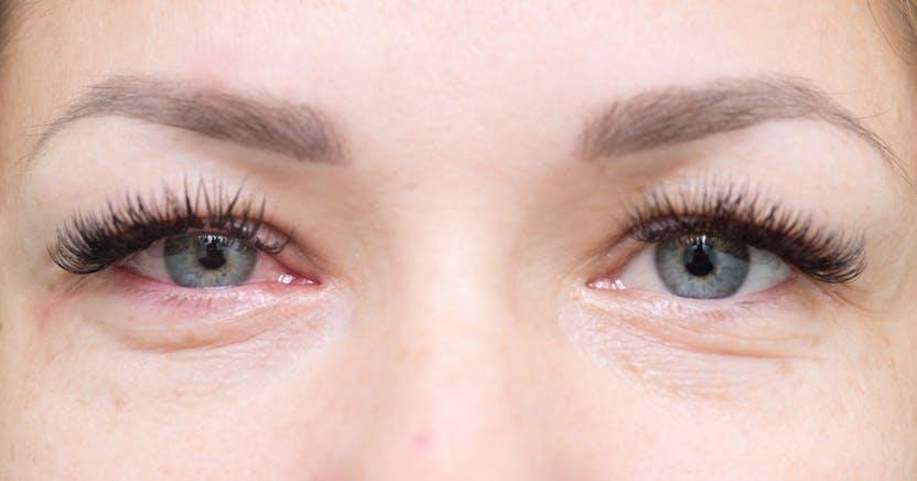 a szem duzzanata magas vérnyomással