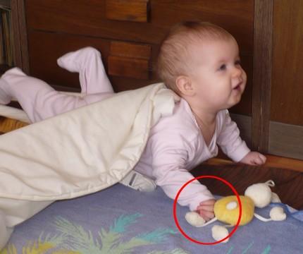 izom hipertónia újszülöttekben az)