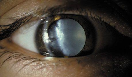 Új formulájú szemészeti gyulladásgátló szer