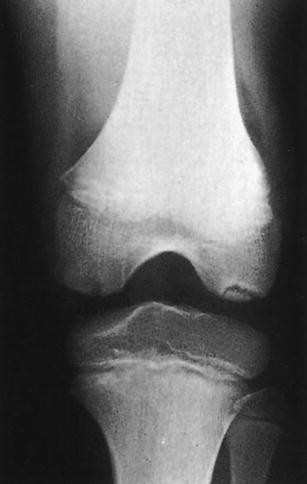 egyidejű hipertónia osteochondrosis 2 fokos magas vérnyomás, amely nem megengedett
