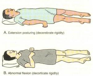flexor hipertónia)