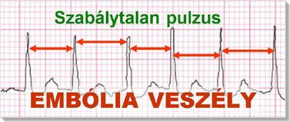 magas vérnyomás és szívritmuszavarok