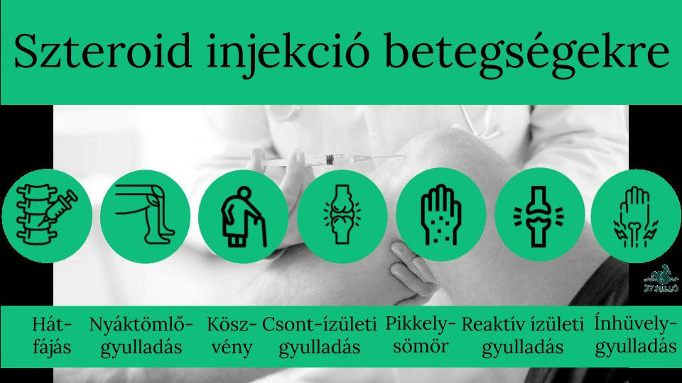 Helyi szteroid injekciós kezelés betegtájékoztatója