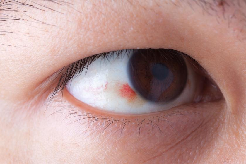 szemgolyó magas vérnyomás eszközök a nyomás csökkentésére magas vérnyomás esetén