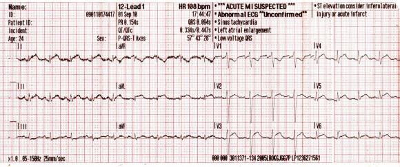 sinus tachycardia magas vérnyomás hipertónia kockázata 4 fok mi ez