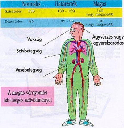 táplálkozási hipertónia diéta kézi magas vérnyomás