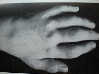 cyanosis hipertóniával