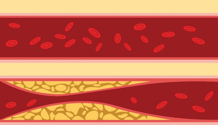 magas vérnyomás és laktáció magas vérnyomás tüneteinek következményei