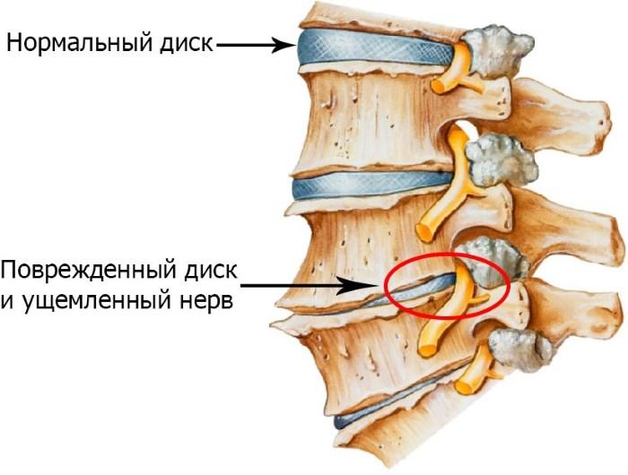 Cervicalis osteochondrosis és vérnyomás - hogyan befolyásolja a kezelést