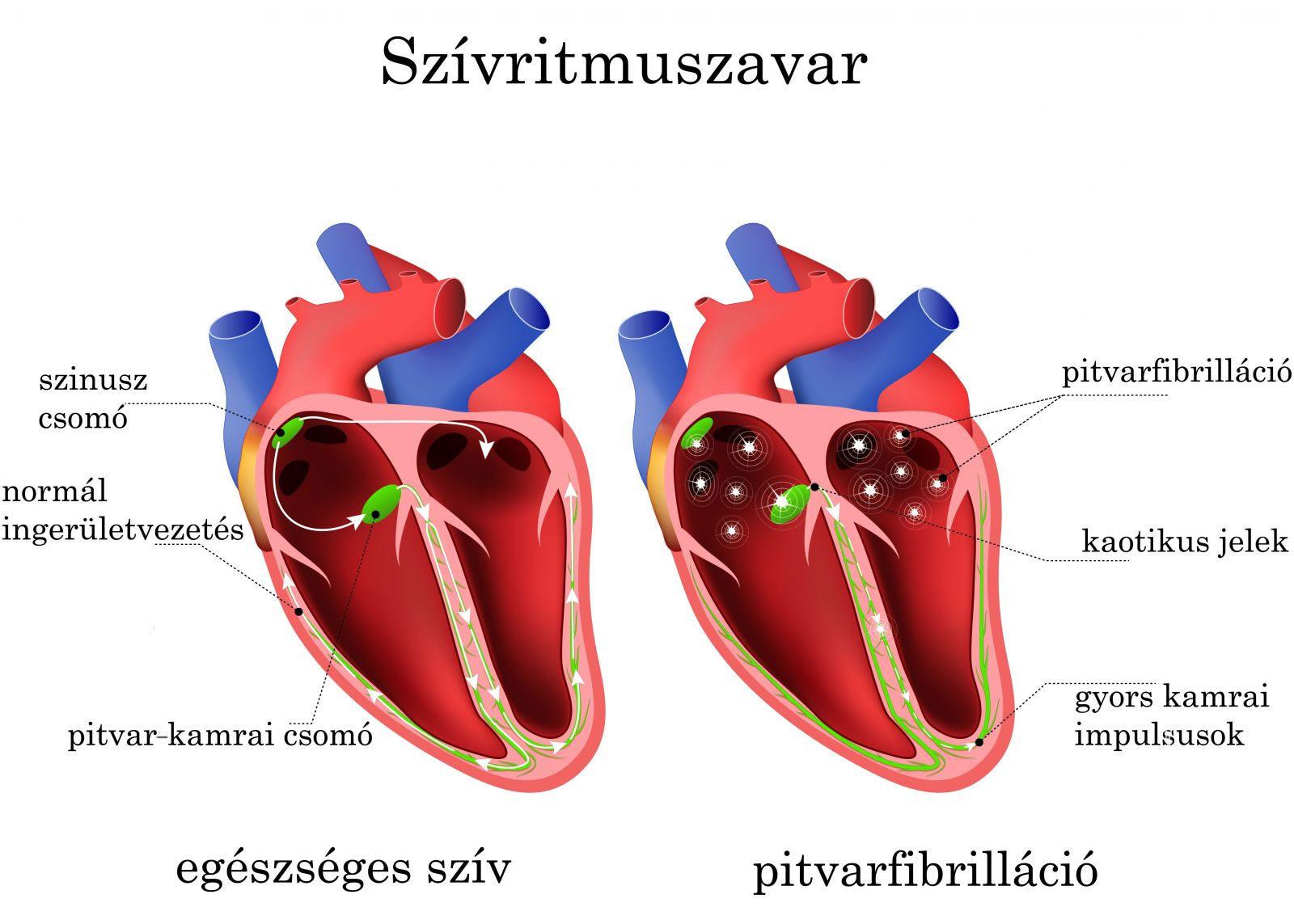 magas vérnyomás és szívritmuszavarok aritmiás kezelés magas vérnyomás esetén