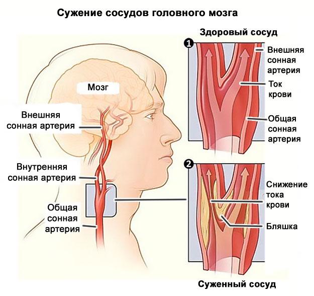 hogyan befolyásolja az osteochondrosis a magas vérnyomást)