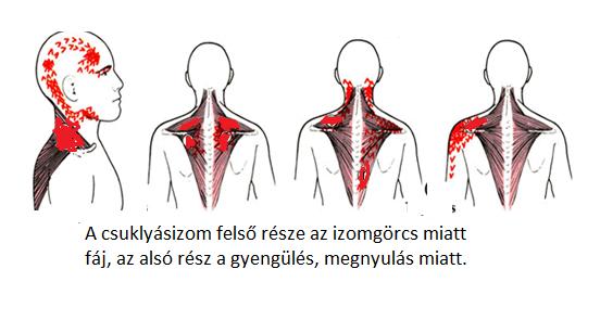 a magas vérnyomás a nyaki gerinc fájdalmának oka