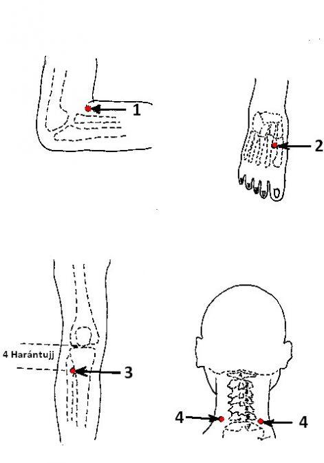 akupunktúrás vélemények magas vérnyomásról)