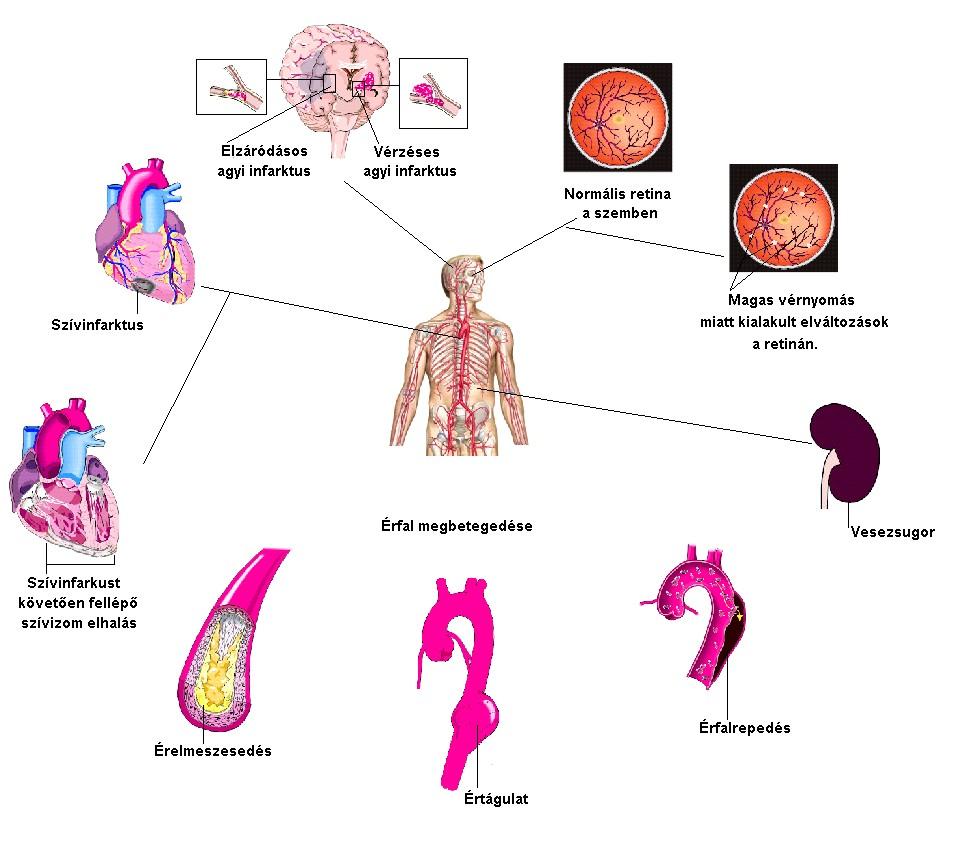 a magas vérnyomás fő oka)