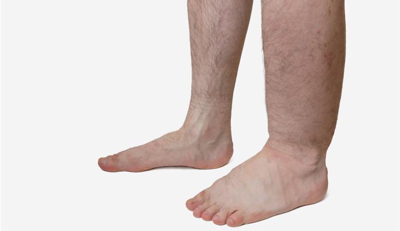 a lábak ödémája magas vérnyomásban