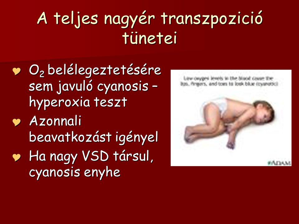 magas vérnyomás kezelése asd 2 vélemény)