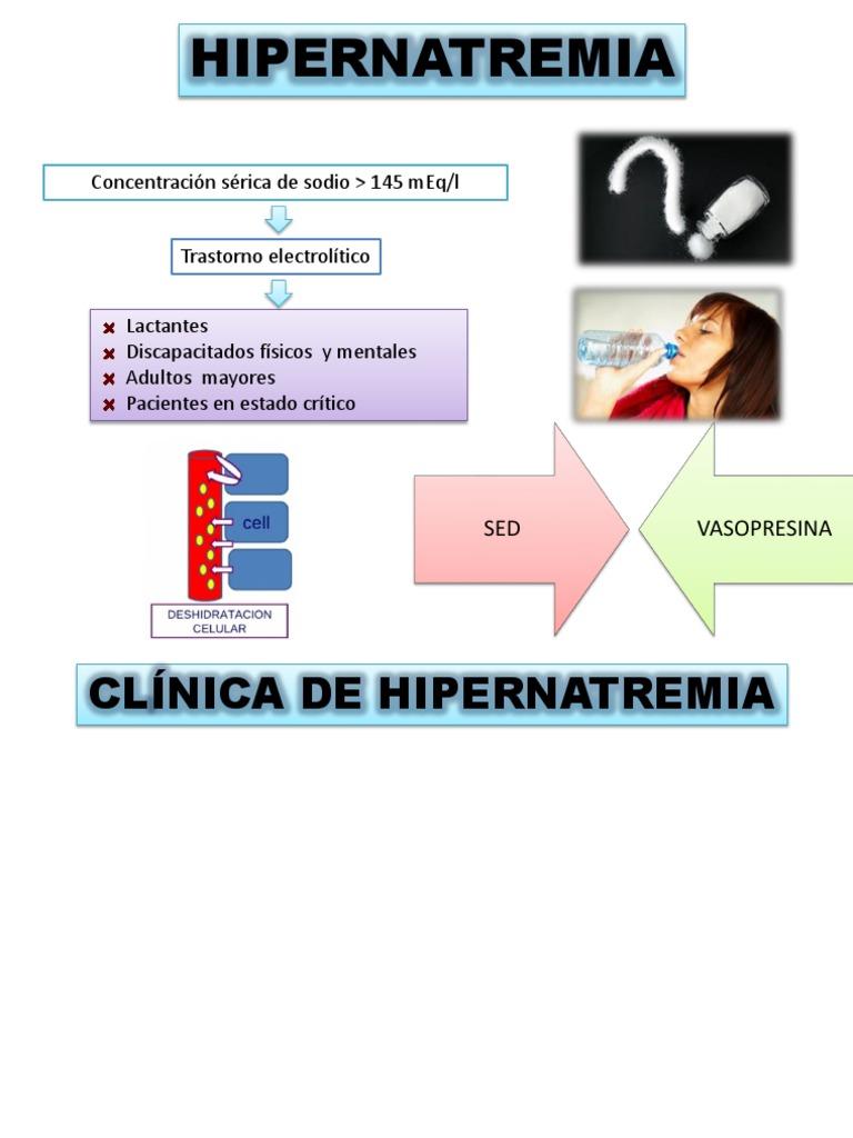 a húgysav hipertónia anyagcserezavarai