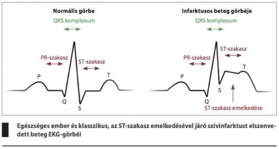 első fokú magas vérnyomás, második szakasz