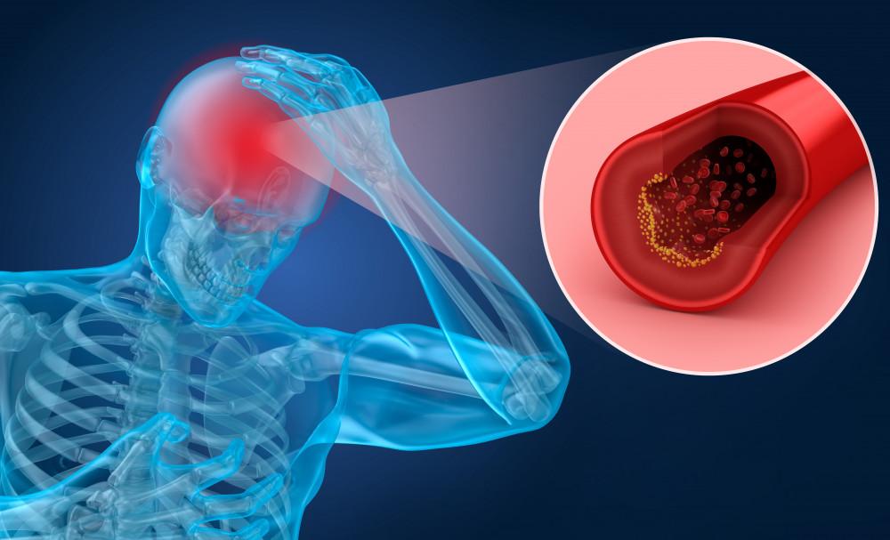 iszkémiás stroke és magas vérnyomás magas vérnyomás esetén adj