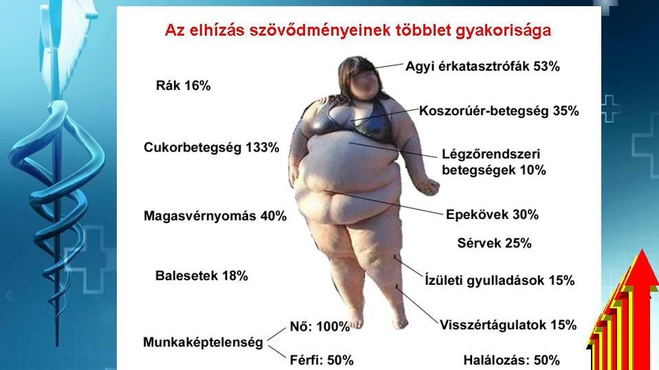magas vérnyomás elhízva)
