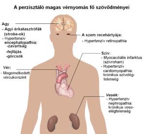 magas vérnyomásban szenvedő nép)