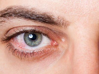 magas vérnyomással, vörös szemekkel