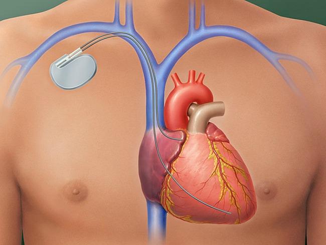 magas vérnyomás 2 stádiumú fogyatékosság izom hipertónia